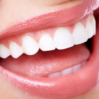Ortodoncia jóvenes