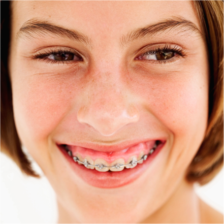 Ortodoncia visible