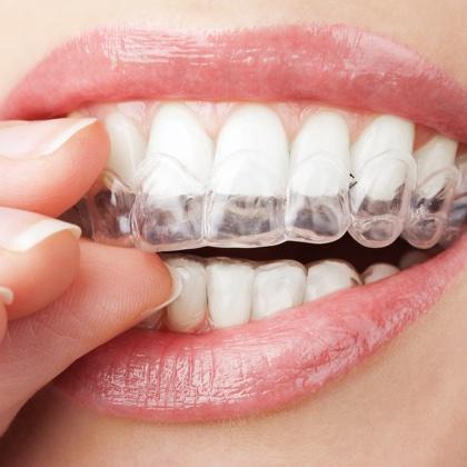 Ortodoncia transparente, Invisalign.