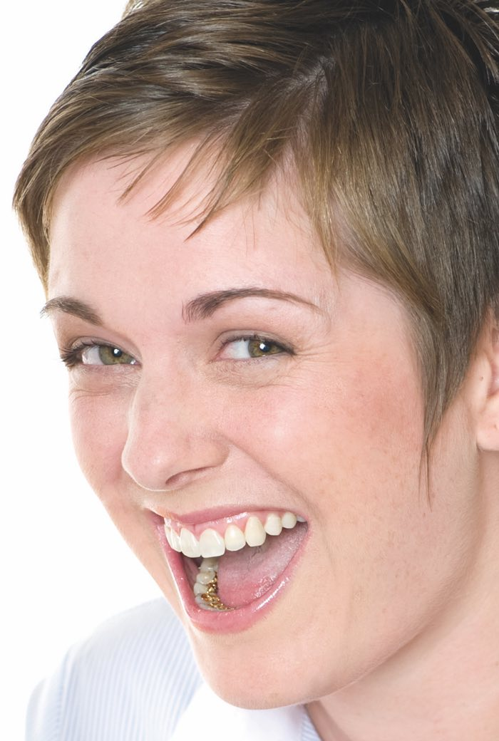 Chica con ortodoncia lingual
