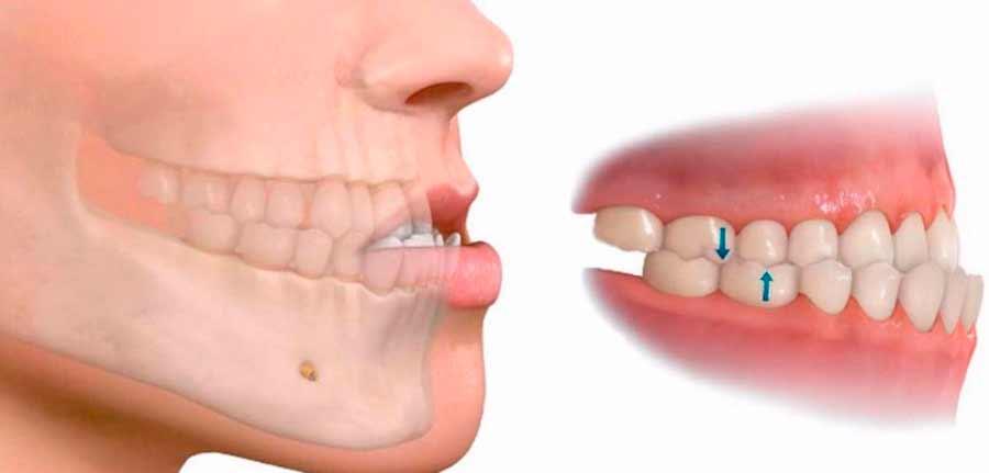 mandibula prominente